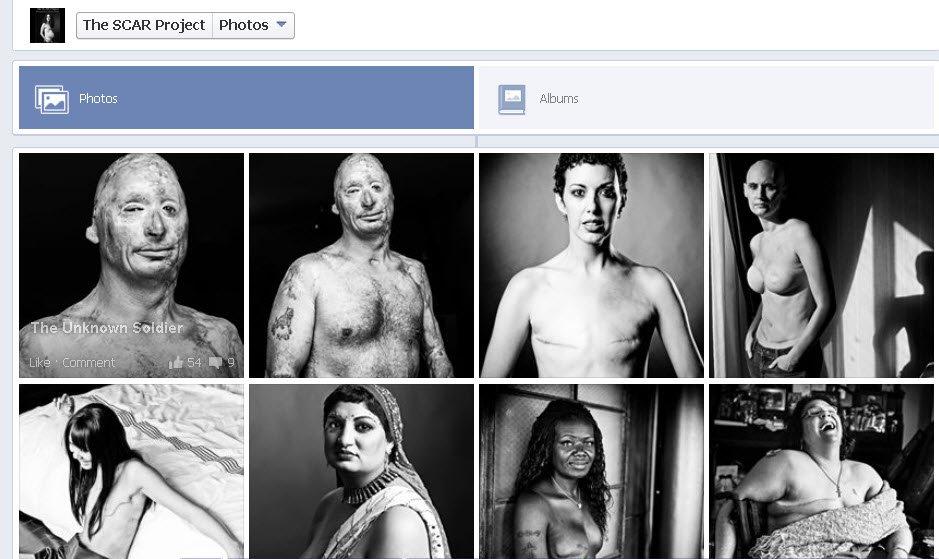 facebook women cancer sue